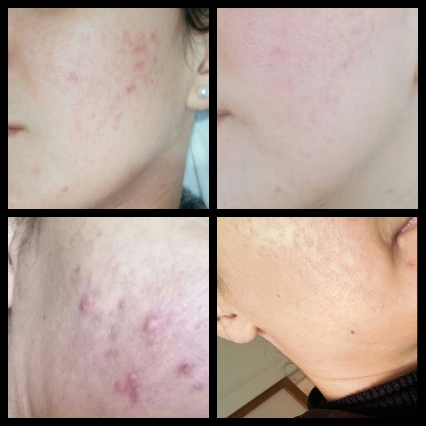 Before and After Using Environ Skincare